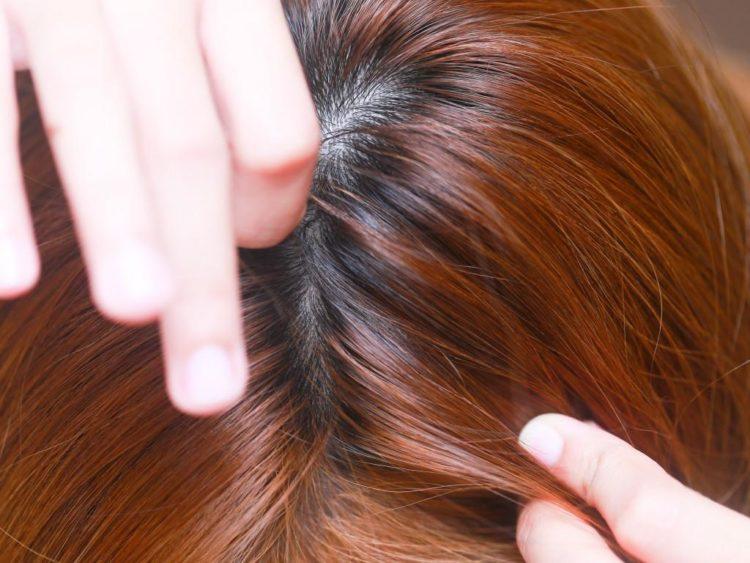 Могут ли жить вши на окрашенных волосах