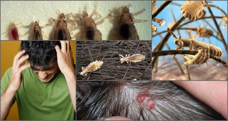 Насекомые на волосах человека